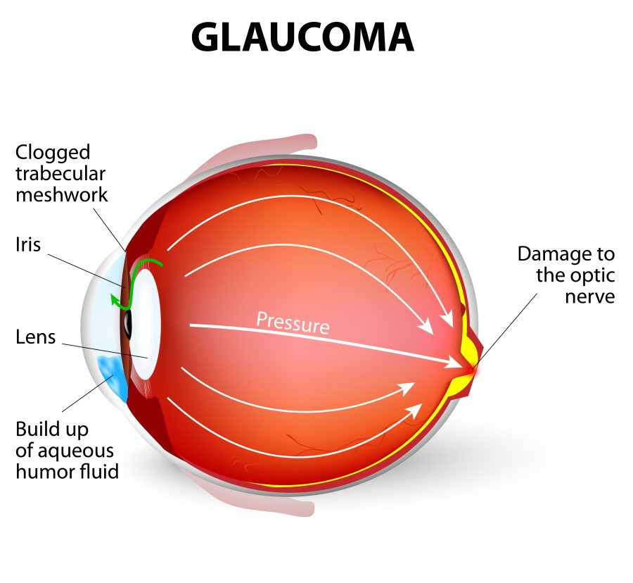 Glaucoma Diagnostic Facility   Bhide Eye Clinic has State-Of-The-Art Diagnostic Facility for Glaucoma Management   1) Intraocular Pressure (IOP) Check-Up facility (Tonometry)  2) Disc Assessment (Ophthalmoscopy)  3) Perimetry    Glaucoma Treatment   1) YAG Laser Iridotomy From Lightmed  2) Glaucoma Medical Treatment  3) Glaucoma Surgery