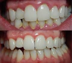 No more yellow teeth.. get your teeth cleaned for Rs 999/-only.
