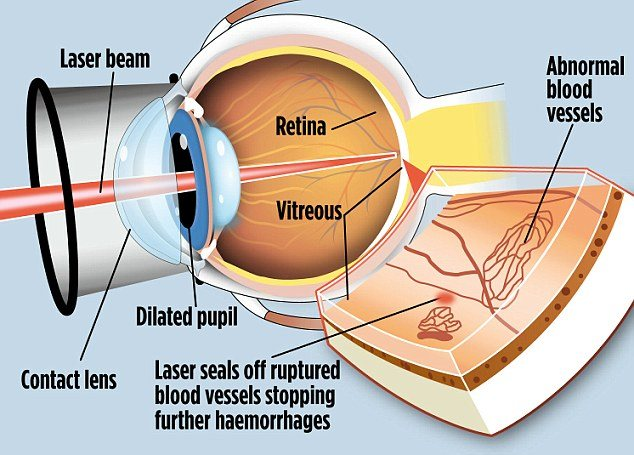 preview  Famous Eye Surgeon in Bhosari , Pune   Cataract and Glaucoma Treatment.