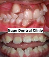 set-of-adult-teeth