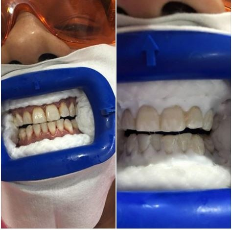 Get your Teeth Sparking in just 30 min with Advanced Philips Zoom Teeth Whitening.