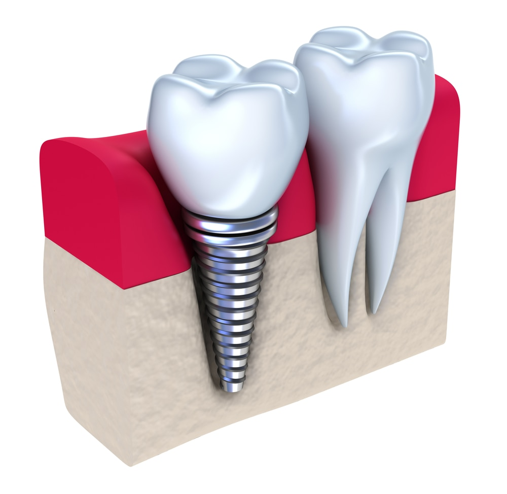 We always strive for the best results possible, and are always trying to deliver the type of service that makes our Patients Smile! We offer affordable, high quality #DentalImplants and #DentistryServices in our state-of-the-art facility.