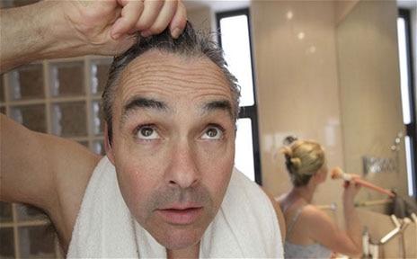 Hair Fall Treatment through Homeopathy.