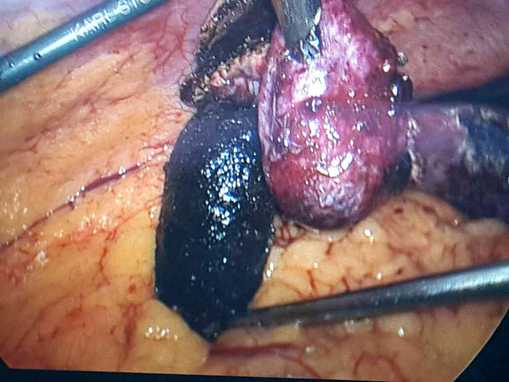 gall bladder and sto