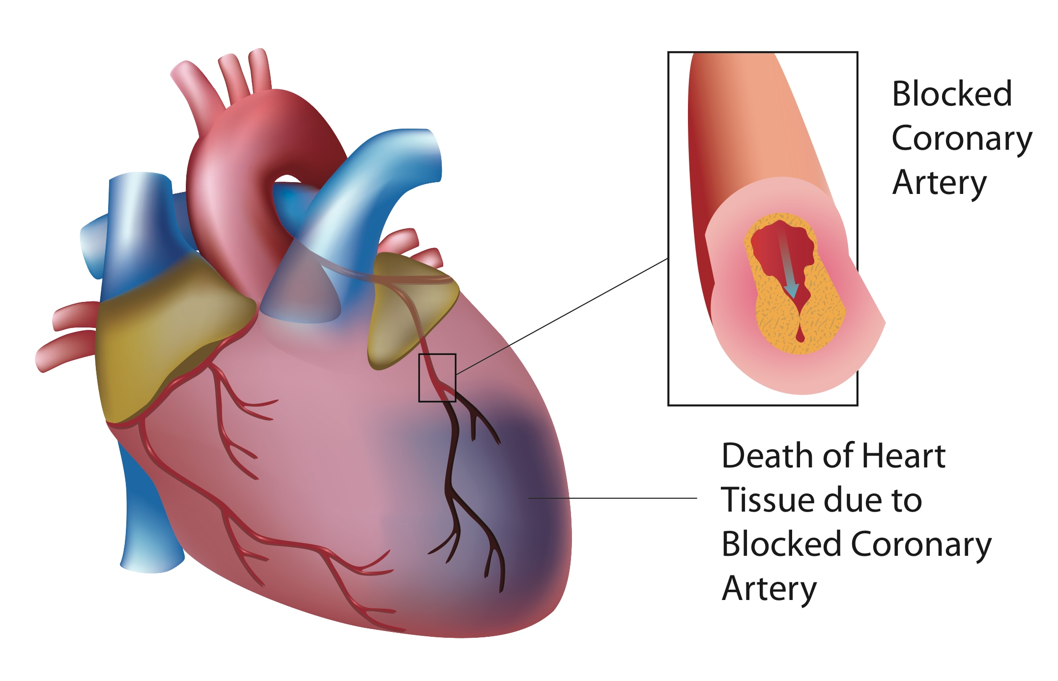 A heart attack happens when the flow of oxygen-rich blood to a section of heart muscle suddenly becomes blocked and the heart can't get oxygen.  If you have any Heart Disease please contact 9983333421 Dr. Sanjeev Sharma- Cardiologist in Jaipur