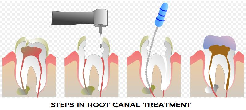 Root Canal Therapy ( R C T )  At the center of a tooth is a hollow area that houses soft tissue, known as pulp or nerve. This hollow area contains a relatively wide space in the coronal portion of the tooth called the pulp chamber. This chamber is connected to the tip of the root via narrow canal(s); hence, the term