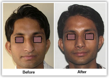 Rhinoplasty services in Bangalore.   Rhinoplasty is commonly known as nose surgery or nose job, is the method by which the shape of the nose is changed to a more desirable one.