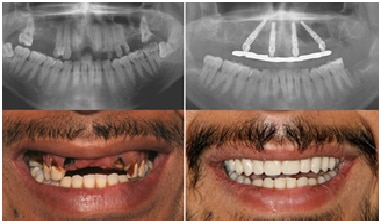 All on 4  Refers to a full denture supported by 4 dental implants in a jaw for the total rehabilitation of patients without any teeth.   Best Dental implant Hospital in Delhi