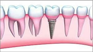 Dental Implants   Dental implants provide a strong foundation for permanent or removable prosthesis (replacement teeth) that are made to match your natural teeth. They are manufactured from biologically neutral pure Titanium or titanium alloys, that is accepted by the human body and these implants fuse with the jawbone to form a secure foundation for tooth replacement.  We are located at Alkapuri, Gujarat, India.  We are also a renowned name for Dental Implants in Gotri, Vadodara, India.