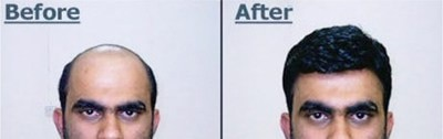 Hair Bonding  Hair Silicon Bonding is a latest technique of Hair Replacement. This is done through a specifically made hair unit which is fixed with the help of Silicon Liquid / Gel. Silicon Liquid or Gel is a medically approved glue which is water proofing and don't have any side effect.  We Are The Leading Consultant Of Hair Bonding In Noida