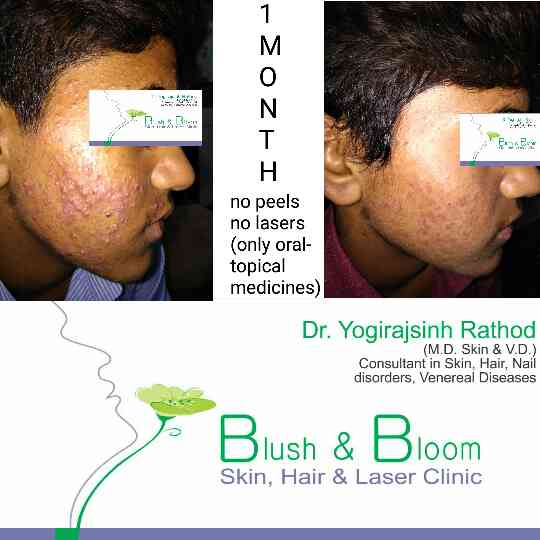 say bye bye to pimples aka acne....... acne treatment available at blushandbloomskinclinic, ahmedabad