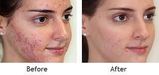 skin and cosmetic laser centre in chandigarh skin doctors in chandigarh  skin specialist in chandigarh