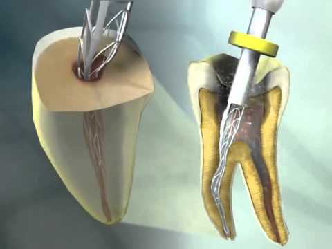 Adaptive Endodontic Technology with SAF( Self Adjusting File) now at Nechupadam Dental for your Safety and Comfort during Pain free Root Canal Treatment