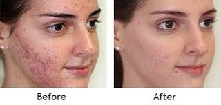 skin treatment in  tricity  chandigarh, mohali, panchkula skin cosmetic laser centre in chandigarh acne care in chandigarh skin clinic in chandigarh best dermatologist in chandigarh