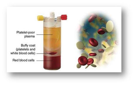 Hair fall treatment in Goa Platelet rich plasma, or often termed as PRP, is concentrated blood plasma (composition of blood) that contains approximately five times the number of platelets found in normal circulating blood. Apart from red blood cells and white blood cells, our blood also contains cells known as platelets. The functions of platelets is to promote healing and aid in the clotting of blood at the site of a wound. Platelets contain growth factors that promote regeneration of the cells in the body. PRP has been used in medicine for the last two decades. The benefits of platelets and the regeneration of tissue is widely known and accepted in medical literature, but its usage in recent medical conditions is currently the way hair loss is treated around the world as it's a revolutionary, new treatment for hair loss.  Platelets aid in clotting of blood which is the key to the body's ability to heal wounds. The idea behind PRP therapy is that by increasing the platelet count in a wounded area, the body's healing capacity in that area would be accelerated. The injection of platelet rich plasma (PRP) is a technique using the body's own blood to heal itself. Doctors incorporate its use for the growth of thinning hair, transplanted hair, and wound healing. Many patients have benefited from this form of treatment.  HOW DOES PRP HELP IN TREATING HAIR LOSS?  If the hair follicles or hair roots are healthy, the growth of the hair is health. Hair follicles survive on the nutrition they get from blood supply. If we introduce platelets survive on the nutrition they get from blood supply. If we introduce platelets by administering platelet rich plasma (PRP) in the area of damaged hair follicles, it amplifies the body's naturally occurring wound healing mechanism. Some doctors around the world believe PRP can be used to stimulate the growth of hair follicles preventing hair loss.