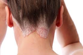 100% Natural therapy for Psoriasis in Jayanagar Bangalore.  Respicare gives salt room therapy for psoriasis.  Salt room therapy is 100% natural and drug less therapy without any side effects.