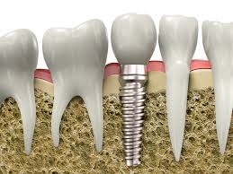 DENTAL IMPLANTSA de