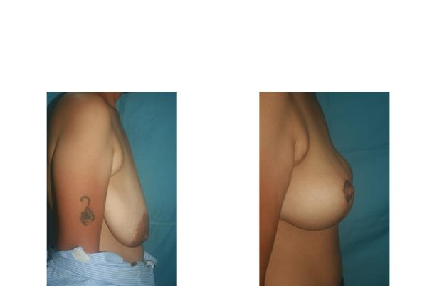 Breast Reduction  Breast Reduction Surgery at Nishtha How much is too much?  Oversized breasts can create a lot of psychological and physical problems in a woman. Because of the size of the breasts, a sense of embarrassment and inferiority complex develops as the woman can not wear many types of dresses.