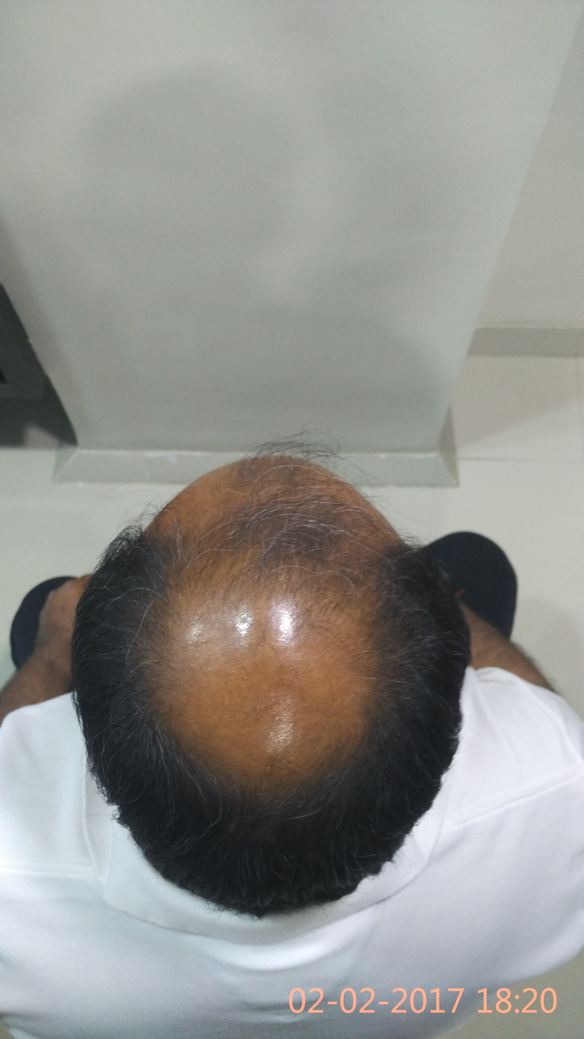 What is the Average cost of Hair Transplantation?  Actually average cost of Hair Transplantation varies significantly among different cities and states in the same country….and sometimes we may notice dramatic difference also...  In India, mostly cost of hair transplant is calculated on hair root or graft basis and varies about 30 INR to 50 INR per graft.  At Dev Hair Transplant Clinic, we offer both methods of Hair Restoration, FUT(Strip Method) and FUE(Stitchless Method) with dedicated quality and still provide savings of around  25-30% compared to other centres in Ahmedabad.  WHY???  Simply, we do not have any overhead…  And secondly, no one is getting paid  commission for your Hair Transplantation.  At the same time we are giving best and most natural looks of Hair Transplant in Ahmedabad. You can contact our satisfied clients as many as you want .  Our Services are available  on Ashram Road, Usmanpura, S G Highway, Bapunagar, Nikol, Naroda and also in Gandhinagar and Surat.