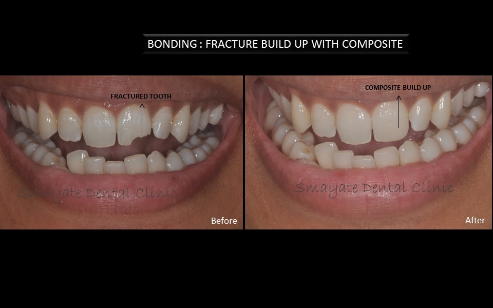 BONDING OF TEETH IN NEW DELHI, INDIA BONDING of teeth ia a very popular procedure especially done to repair the irregularities in teeth . If your teeth are chipped, broken, cracked or badly stained or have slight gaps, ask our  dentists at Smayate Dental Clinic in Delhi about bonding. Bonding is a cosmetic procedure that uses tooth-colored materials that are attached or bonded to the tooth surface. Bonding usually can be completed in one visit. This is a quick-fix treatment for irregular teeth.