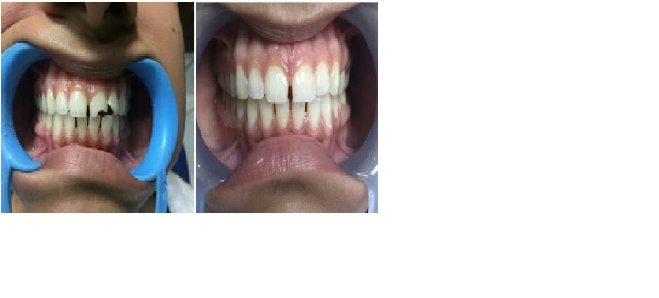 Dental Veneers   Patient Reported with trauma resulting fracture of frontal tooth. Composite Veneers were done to restore the structure and shade of the tooth.    Best dental clinic for Cosmetic Treatment in Delhi
