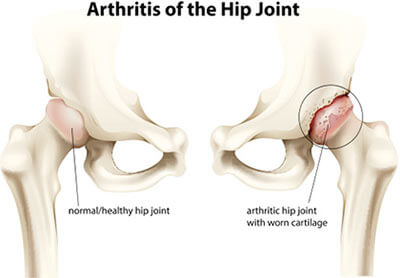 Hip Osteoarthritis Treatment Specialist Doctors in Chennai :
