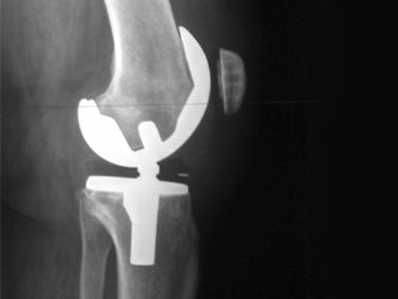 Joint Replacement Surgery  Joint replacement surgery, is a procedure of orthopedic surgery in which an arthritic or dysfunctional joint surface is replaced with an orthopedic prosthesis. Joint replacement is considered as a treatment when severe joint pain or dysfunction is not alleviated by less-invasive therapies.   We are located at Vadodara, Gujarat, India.