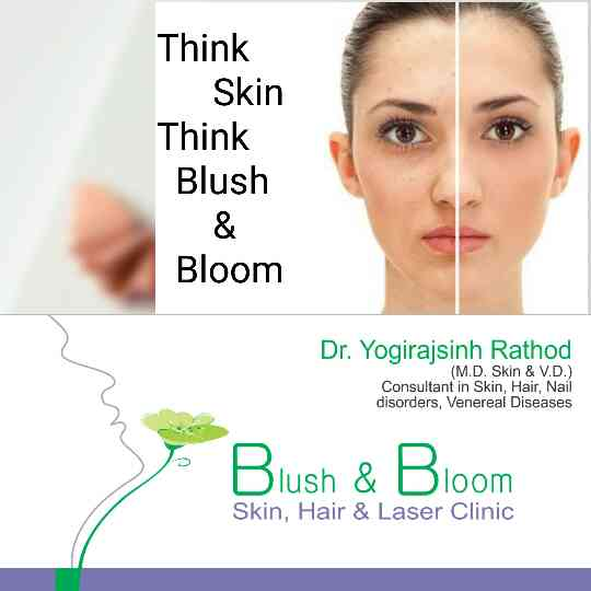 get the best out your skin by Peeling Of Skin ...    Think Skin , Think Blush& Bloom.......