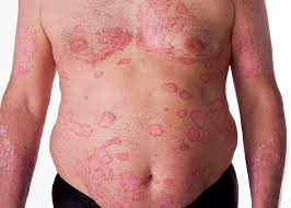 Psoriasis treatment Salt room therapy helps to  alleviate the symptoms of Psoriasis dry salt aerosol has a beneficial effect on skin micro-circulation http://www.respicareindia.com/indications.html