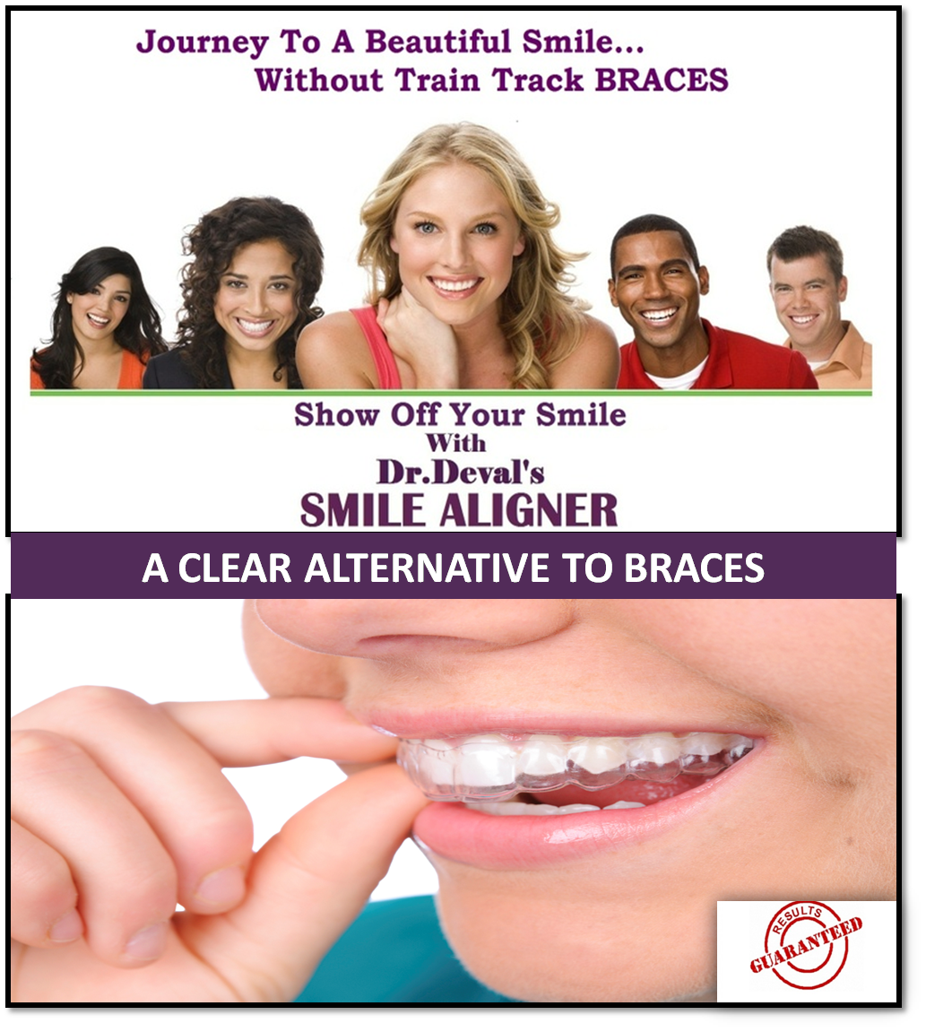 Invisible Braces : Few people are lucky enough to be born with a set of perfectly aligned teeth. This fact and the pursuit for beautiful smile led to the development of braces. Traditional braces did help realign teeth, but are uncomfortable and affect a person's appearance while they are in use. Ceramic braces are less noticeable as the brackets are clear or tooth colored. Invisible braces are the latest in dental realignment therapy. They are virtually invisible and are not associated with any dietary restrictions unlike the earlier forms of braces.  Invisible braces are also known as aligners. Aligners are similar to mouth guards in appearance, but are custom built to fit tightly around the patient's teeth. These slip over the teeth and are designed to be removed and replaced every fortnight. Aligners may also be removed for eating, brushing and flossing. Each set of aligners vary slightly so as to move your teeth forcefully and correct your bite.  Treatment time of invisible braces depends on how much the teeth needs to be moved. In most cases, treatment takes between 10 months to 24 months. Aligners are also often used by adults who wore braces as children to correct slight displacement of teeth. In such cases, treatment could take as little as 10 weeks.  However, not everyone can get invisible braces. Aligners are custom built to fit tightly over teeth. This makes them unfit for use on children teeth as their teeth are constantly growing and developing. This is typically used for patients suffering from mild to moderately crowded teeth or those who have minor spacing issues between teeth. It can also be used as a follow up form of treatment for traditional braces.  Invisible braces are also slightly more expensive as compared to traditional braces as they are custom fitted.  The first step towards getting invisible braces is an X-ray, dental photographs and impression of the patient's teeth, gums and bite. These are then used to create a digital 3D representat