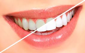How long will the results of Teeth Whitening last? Like other investments, if you whiten your teeth, the length of time you can expect it to last will vary. If you smoke, drink red wine or coffee, or consume other acid-containing foods, your bright smile may begin to yellow more quickly than you expect. In general, a Teeth Whitening procedure can last up to a few years. And even though the results can fade, occasional touch-ups can be done to regain luster.