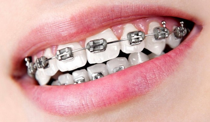 We understand the trouble which is caused by the spaces in between teeth or badly aligned or maligned teeth. Hence our Dental Clinic have Orthodontists who take the responsibility to fix all the deformities using different kinds of Braces. We specialise in either Invisalign or Self Ligating Braces which can either of metal or tooth coloured. Our Dental Clinic is well ahead of other clinics because we specialise in all types of orthodontic treatments which are not only world class but also affordable. Our Orthodontists use special techniques for making the treatment faster than normal and also offer the most reliable results by never making the patients uncomfortable during the orthodontic treatment.