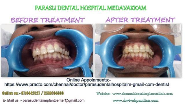 Dentist in Chennai