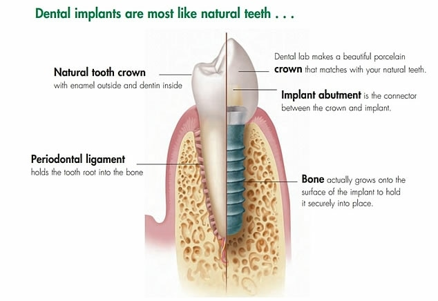Want natural teeth replacement? Dental implants is the Best modality for teeth replacement. Visit Dental Square for most affordable Dental implants in Gujarat. Dental Square in New Alkapuri. Call 9725290571