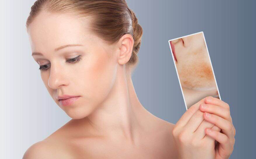 Pigmentation can be treated. Stop worrying about the bad skin Beautiful skin can be yours now at an affordable price @Dr Hair & Skin Clinic Malleshwaram Kumaraswamy layout Indiranagar Bangalore 9482166333 8791055111   www.drhairskin.in
