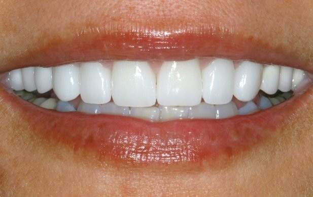 Leading Centre for TEETH REPLACEMENT IN BARODA Visit Dental Square for best teeth in Vadodara Dental Square is a multi speciality dental clinic in Vadodara for teeth problems Visit www.dentistinvadodara.com Or Call 9725290571 to book appointment