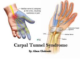 Carpal Tunnel Syndrome:  Carpal tunnel syndrome is a common condition that causes pain, numbness, and tingling in the hand and arm. The condition occurs when one of the major nerves to the hand — the median nerve — is squeezed or compressed as it travels through the wrist.  In most patients, carpal tunnel syndrome gets worse over time, so early diagnosis and treatment are important. Early on, symptoms can often be relieved with simple measures like wearing a wrist splint or avoiding certain activities.  If pressure on the median nerve continues, however, it can lead to nerve damage and worsening symptoms. To prevent permanent damage, surgery to take pressure off the median nerve may be recommended for some patients.  Cause:  Most cases of carpal tunnel syndrome are caused by a combination of factors. Studies show that women and older people are more likely to develop the condition.  Other risk factors for carpal tunnel syndrome include:  Heredity. This is likely an important factor. The carpal tunnel may be smaller in some people or there may be anatomic differences that change the amount of space for the nerve—and these traits can run in families. Repetitive hand use. Repeating the same hand and wrist motions or activities over a prolonged period of time may aggravate the tendons in the wrist, causing swelling that puts pressure on the nerve. Hand and wrist position. Doing activities that involve extreme flexion or extension of the hand and wrist for a prolonged period of time can increase pressure on the nerve. Pregnancy. Hormonal changes during pregnancy can cause swelling. Health conditions. Diabetes, rheumatoid arthritis, and thyroid gland imbalance are conditions that are associated with carpal tunnel syndrome.  Symptoms:  Symptoms of carpal tunnel syndrome may include:  Numbness, tingling, burning, and pain—primarily in the thumb and index, middle, and ring fingers Occasional shock-like sensations that radiate to the thumb and index, middle, and ring fingers Pain or tingling that may travel up the forearm toward the shoulder Weakness and clumsiness in the hand—this may make it difficult to perform fine movements such as buttoning your clothes Dropping things—due to weakness, numbness, or a loss of proprioception (awareness of where your hand is in space) In most cases, the symptoms of carpal tunnel syndrome begin gradually—without a specific injury. Many patients find that their symptoms come and go at first. However, as the condition worsens, symptoms may occur more frequently or may persist for longer periods of time.  Night-time symptoms are very common. Because many people sleep with their wrists bent, symptoms may awaken you from sleep. During the day, symptoms often occur when holding something for a prolonged period of time with the wrist bent forward or backward, such as when using a phone, driving, or reading a book.  Nonsurgical treatments may include:  Bracing or splinting. Wearing a brace or splint at night will keep you from bending your wrist while you sleep. Keeping your wrist in a straight or neutral position reduces pressure on the nerve in the carpal tunnel. It may also help to wear a splint during the day when doing activities that aggravate your symptoms.   Wearing a splint or brace reduces pressure on the median nerve by keeping your wrist straight. Nonsteroidal anti-inflammatory drugs (NSAIDs). Medications such as ibuprofen and naproxen can help relieve pain and inflammation.  Activity changes. Symptoms often occur when your hand and wrist are in the same position for too long—particularly when your wrist is flexed or extended.  If your job or recreational activities aggravate your symptoms, changing or modifying these activities can help slow or stop progression of the disease. In some cases, this may involve making changes to your work site or work station.  Nerve gliding exercises. Some patients may benefit from exercises that help the median nerve move more freely within the confines of the carpal tunnel. Specific exercises may be recommended by your doctor or therapist.  Steroid injections. Corticosteroid, or cortisone, is a powerful anti-inflammatory agent that can be injected into the carpal tunnel. Although these injections often relieve painful symptoms or help to calm a flare up of symptoms, their effect is sometimes only temporary. A cortisone injection may also be used by your doctor to help diagnose your carpal tunnel syndrome.