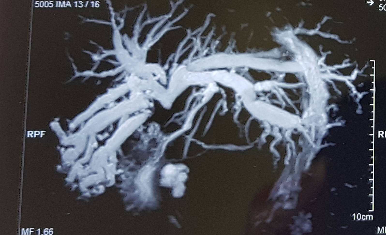 Ercp Triple stenting