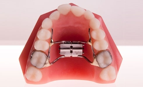 Palatal Expanders are used to widen upper jaw and palate so teeth don't get too crowded and upper jaw fits better with your lower one. They are also named as rapid Palatal Expander, puts pressure on the Upper Teeth. The Expander, which sits on the palate and presses metal plates against the teeth. For more details Contact us.