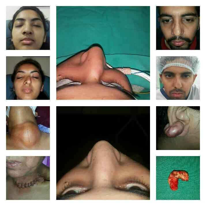 Nose reshaping Dr buttar phase 7 Call for appointment just dial Dr buttar phase 7 Call for appointment practo Dr buttar phase 7 Call for appointment 9815800841  Best ent doctor mohali dr buttar phase 7 Best ent specialist mohali dr buttar phase 7