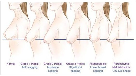 bd2bfd5eda Breast Asymmetry Asymmetrical breasts may be corrected by various  operations depending on breast size and extent of asymmetry. Breast implant  placement ...
