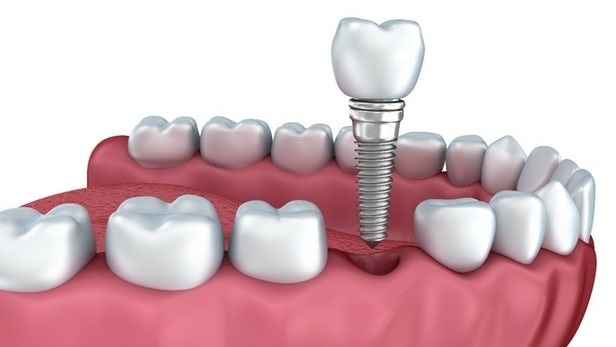 Get full mouth dental implants in vadodara. Affordable implant treatment at Dental Square, Vadodara. Call 9725290571 to book an appointment.