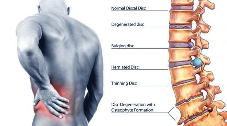 Ayurvedic treatment center for Back ache in nashik,