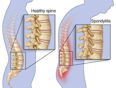 Spondylitis and Ayurvedic Treatment at Ayushree Ayurvedic Hospital & Research Centre Part II  Spondylitis can be easily cured with Ayurvedic treatments like Panchakarma and Marma chikitsa  at Ayushree Ayurvedic Hospital and Research Centre. They take care of the basic cause of such conditions and mostly all conditions are permanently resolved.  The speciality of treatments at Ayushree is that patients experience instant pain relief. We invite you to consider this option before any surgery or intervention of the Spine.  Let's get some information on what therapies are done at Ayushree Ayurvedic Hospital and Research Centre. Pinda Sweda is one of the therapies in Panchakarma recommended for the treatment of Spondylitis. Pinda means ball made up of either herbs, leaves or rice cooked with medicines and tied in a cloth. This pinda is used for massage. It specifically reduces the muscle spasms, inflammation and reduces the pain. The specific herbs repir the dmaged muscle fibres and ligaments and thereby improves the strength of muscles and ligaments.  The degenerative changes in the muscles, ligaments and bones are reversed by the medicated oils used internally and externally during the treatments.  Panchakarma at Ayushree is an effective way of treating back pain and spondylitis.  Dr. Abhay Kulkarni MD (Ayurveda) Dr. Rajashree Kulkarni MD (Ayurveda) www. ayushree.com