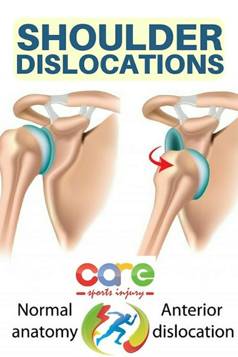 Shoulder dislocation<br />Shoulder is the common joint to get ...