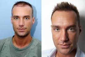 We are the one of the Best Clinic of Hair Transplant in india