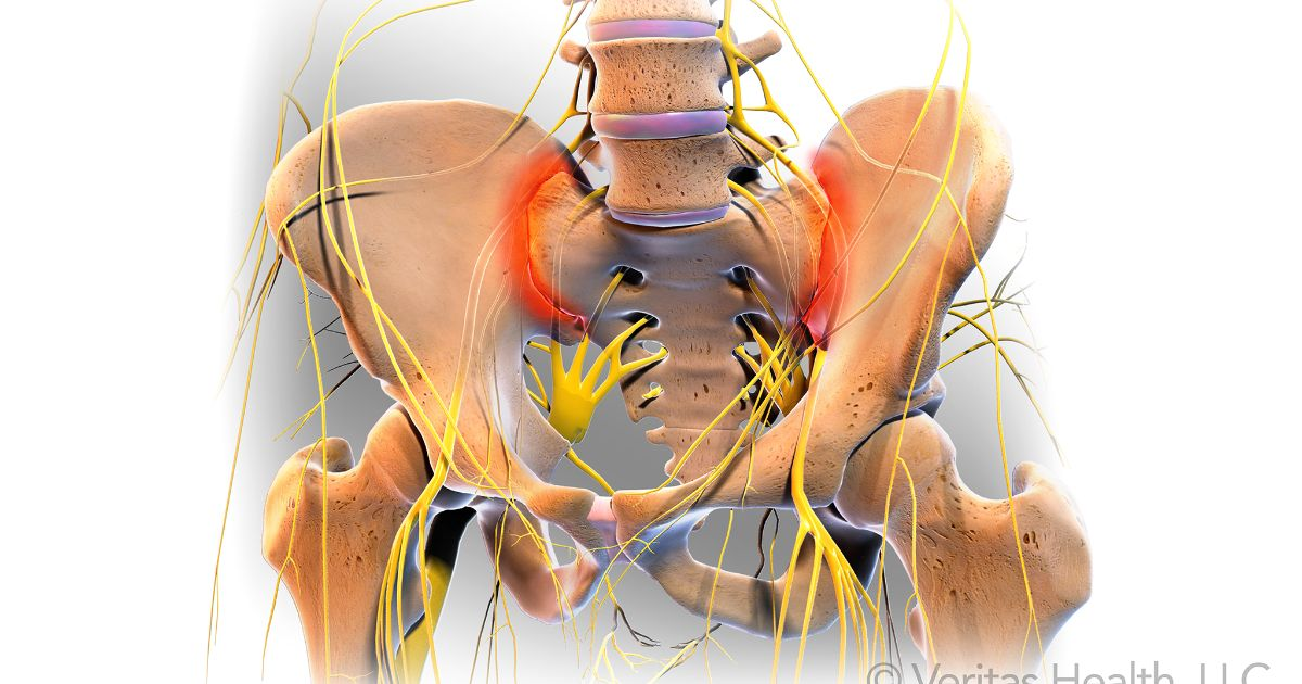 Sacroiliac Joint Dysfunction (SI Joint Pain) The sacroiliac joint, or SI Joint, is the joint next to the bottom of the spine connecting the sacrum with the pelvis. Treatments for SI joint pain are usually non-surgical, and focus on the restoration of normal motion of the joint. SI joint irritation is a common cause of low back pain. Anatomical Source of Sacroiliac Joint Pain The sacroiliac joint lies next to the bottom of the spine, below the lumbar spine and above the tailbone (coccyx). It connects the sacrum (the triangular bone at the bottom of the spine) with the pelvis (iliac crest). The joint typically has the following characteristics:  Small and very strong, reinforced by strong ligaments that surround it Does not have much motion Transmits all the forces of the upper body to the pelvis (hips) and legs Acts as a shock-absorbing structureWhile it is not clear how the pain is caused, it is thought that an alteration in the normal joint motion may be the culprit that causes sacroiliac pain. This source of pain can be caused by either:  Too much movement (hypermobility or instability): The pain is typically felt in the lower back and/or hip and may radiate into groin area. Too little movement (hypomobility or fixation): The pain is typically felt on one side of the low back or buttocks, and can radiate down the leg. The pain usually remains above the knee, but at times pain can extend to the ankle or foot. The pain is similar to sciatica, or pain that radiates down the sciatic nerve and is caused by a radiculopathy. This condition is generally more common in young and middle-aged women.  Accurate Diagnosis of Sacroiliac Joint Dysfunction Accurately diagnosing sacroiliac joint dysfunction can be difficult because the symptoms mimic other common conditions, including other mechanical back pain conditions like facet syndrome as well as other lumbar spine conditions including disc herniation and radiculopathy (pain along the sciatic nerve that radiates down the leg).A diagnosis is usually arrived at through physical examination (eliminating other causes) and/or an injection (utilized to block the pain).  Physical Examination to Determine the Source of Pain In physical examination, the doctor may try to determine if the sacroiliac joint is the cause of pain through movement of the joint. If the movement recreates the patient's pain, and no other cause of pain can explain the patient's pain and symptoms (such as a disc herniation on an MRI scan), the sacroiliac joint may be the cause of the pain.  See Getting an Accurate Back Pain Diagnosis  Article continues below  There are several orthopedic provocative tests that can be used in an attempt to reproduce the symptoms associated with sacroiliac joint dysfunction. As a rule, several positive tests that reproduce pain specifically located at the sacroiliac joint improves the probability of the diagnosis of sacroiliac joint dysfunction. For example, a physical exam may consist of the following:  The patient may lie face up on the edge of an examination table with the leg of the affected side hanging off the side of the table towards the floor or resting on a nearby stool so that the sacroiliac joint lies on the edge of the table. The opposite knee can be drawn to the chest to further isolate the SI joint on the side of the hanging leg. In this position, there is no support for the hip joint and pressing down on the iliac crest (pelvis) or upper thigh may reproduce the patient's pain. Care in locating the pain directly over the SI joint is needed as other structures of the lumbar spine and pelvis are also stressed in this position.  Treatment Options for Sacroiliac Joint Dysfunction Treatments for sacroiliac joint dysfunction (SI joint pain) are usually conservative (meaning non-surgical) and focus on trying to restore normal motion in the joint.  Lumbar rotation SI joint stretch Stretching the structures surrounding the SI joints can help with SI joint dysfunction symptoms. Watch: Video: Lumbar Rotation SI Joint Stretch for Sciatic Pain Relief  Typical treatments for sacroiliac joint dysfunction include:  Ice, heat, and rest Initial treatment recommendations will typically include use of ice or cold packs, applied in 15 to 20 minute intervals as needed to reduce inflammation in the area, along with rest to reduce irritation. Depending on the duration of sharp, intense pain, ice can be continued anywhere between 2 days to 2 weeks. Once the inflammation is less, gradual return to normal activities may be advisable. Application of heat (such as a heat wrap or hot bath) may help the healing process, but not during the acute, high intense pain time frame. See Heat Therapy Cold Therapy  Medications  Sacroiliac Joint Pain. Click to enlarge First line of treatment often may include pain medications (such as acetaminophen), as well as anti-inflammatory medications (such as ibuprofen or naproxen) to reduce the swelling that is usually contributing to the patient's pain. Article continues below  Chiropractic manipulations Manual manipulation provided by a chiropractor, osteopathic doctor, or other qualified health practitioner may help. This can be highly effective when the SI joint is fixated or