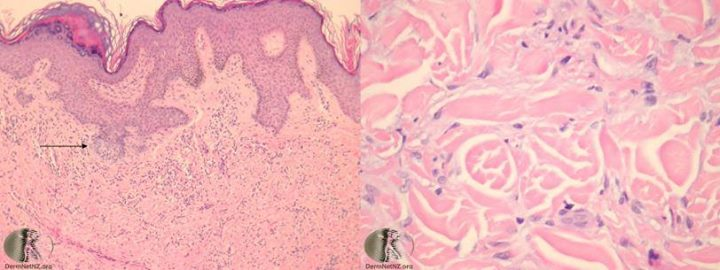 Multiple  Choice Question for JIPMER 2018  A 23-yrs-old, woman presents with a 0.4.cm firm brown lesion on her upper right thigh and histology is shown Which of the following is the most likely diagnosis? 1. Dermatofibroma 2. Dermatofibrosarcoma protuberans 3. Fibroxanthoma 4. Pyogenic granuloma  For more info visit us at http://adrplexus.nowfloats.com/Multiple-Choice-Question-for-JIPMER-2018-A-23-yrs-old-woman-presents-with-a-0-4-cm-firm-brown-lesion-on-her-upper-right-/b294
