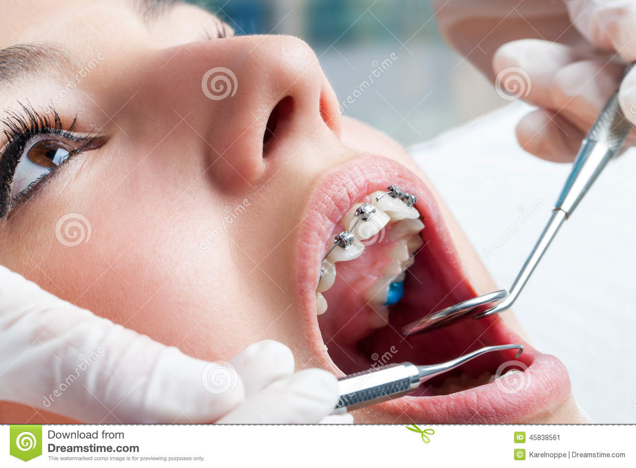 Question : I checked my teeth I found I am having cavity in one premolar and back side of the teeth in my premolar their is tiny two hole and back side their is black dot is their what options does I have and what can I do to get it treated by myself.   Answer : Dental Caries(Cavity) is an irreversible process....once you have a cavity it does not heal or repair by itself or medication The best option for you is to get the cavity restored(Filling) before it becomes too deep and gives you more problems.