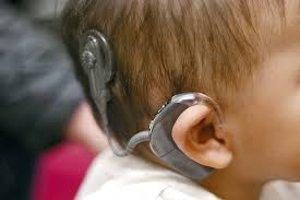 cochlear implant in